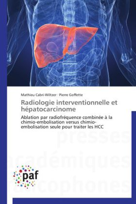 Radiologie Interventionnelle Et Hepatocarcinome