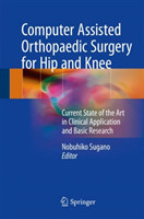 Computer Assisted Orthopaedic Surgery for Hip and Knee Current State of the Art in Clinical Application and Basic Research